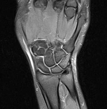 Artroskopija